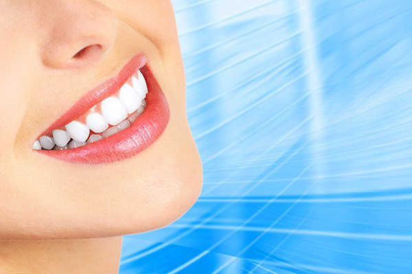 Pros And Cons Of Professional Teeth Whitening